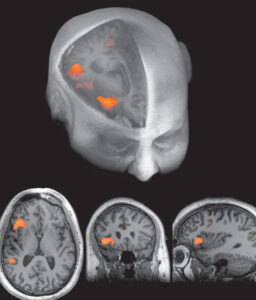 3T MRI scan for brain imaging - Radiology and Imaging Specialists - Lakeland, FL